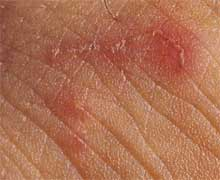 Scabies | American Academy of Dermatology